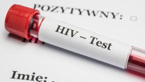 Test HIV/Fot.PAP